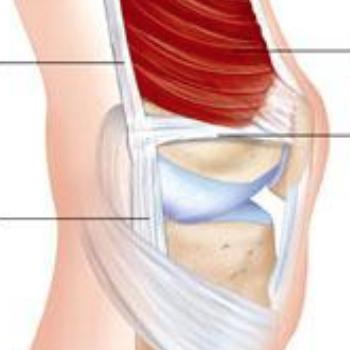 Medial Patellofemoral Ligament (MPFL)