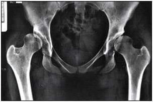 Acetabular Dysplasia