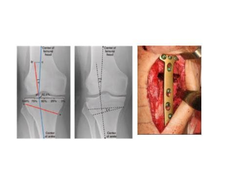 Measurements for high tibial osteotomy